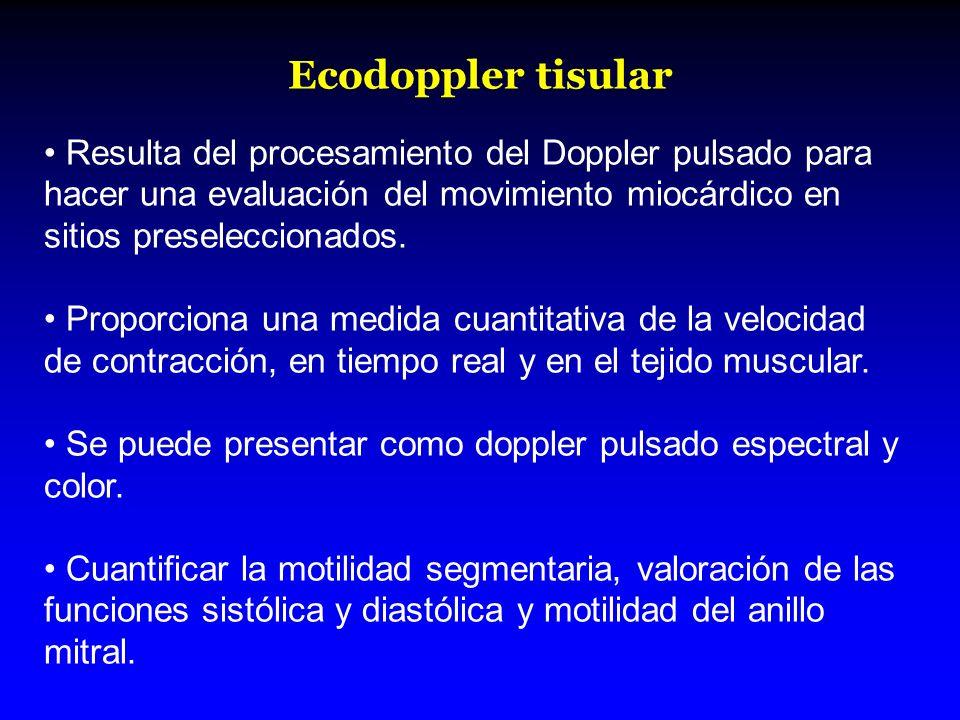 Ecodoppler tisular Resulta del procesamiento del Doppler pulsado para hacer una evaluación del movimiento miocárdico en sitios preseleccionados. Propo