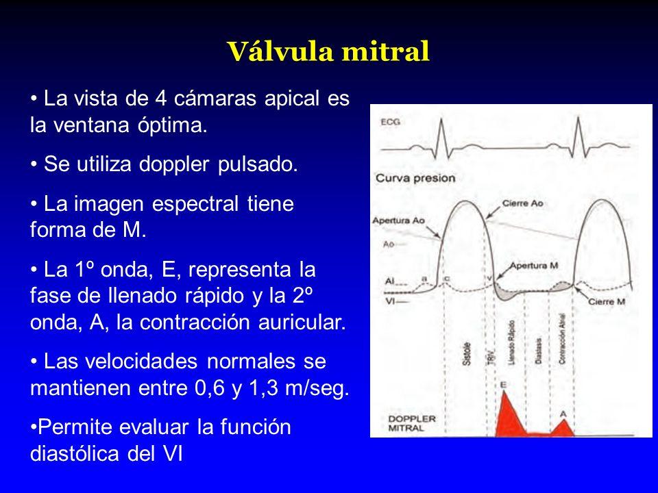 Válvula mitral La vista de 4 cámaras apical es la ventana óptima. Se utiliza doppler pulsado. La imagen espectral tiene forma de M. La 1º onda, E, rep
