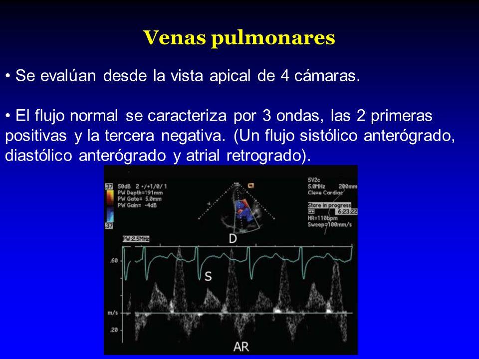 Venas pulmonares Se evalúan desde la vista apical de 4 cámaras. El flujo normal se caracteriza por 3 ondas, las 2 primeras positivas y la tercera nega