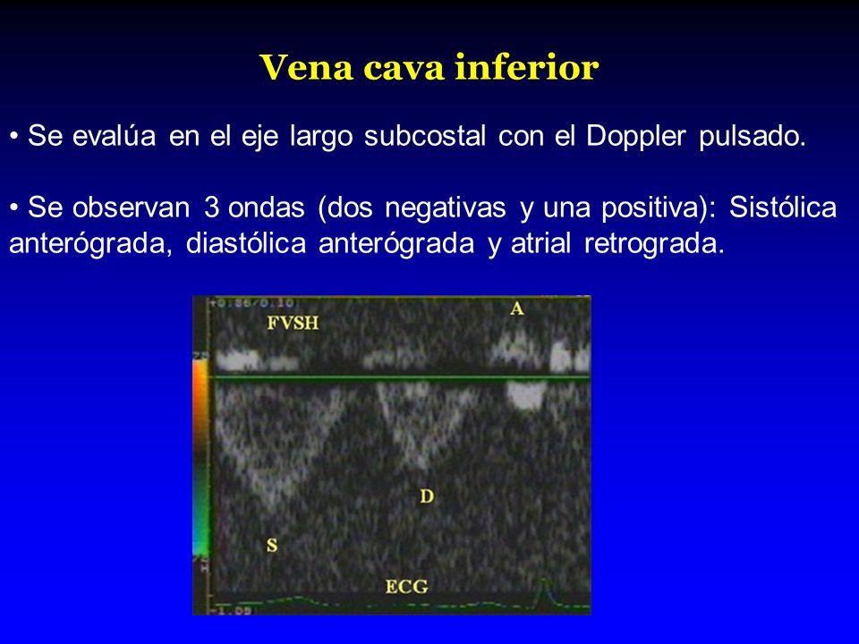 Vena cava inferior Se evalúa en el eje largo subcostal con el Doppler pulsado. Se observan 3 ondas (dos negativas y una positiva): Sistólica anterógra