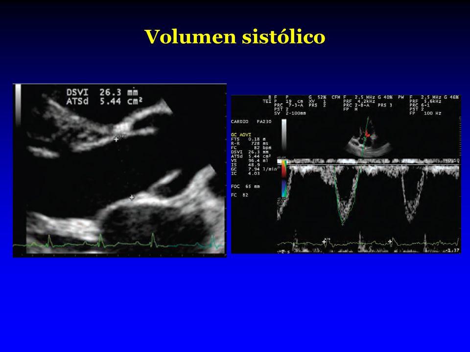 Volumen sistólico