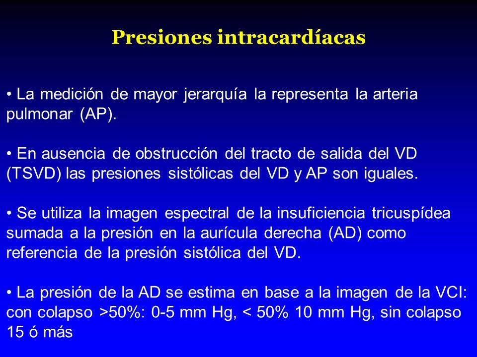 Presiones intracardíacas La medición de mayor jerarquía la representa la arteria pulmonar (AP). En ausencia de obstrucción del tracto de salida del VD