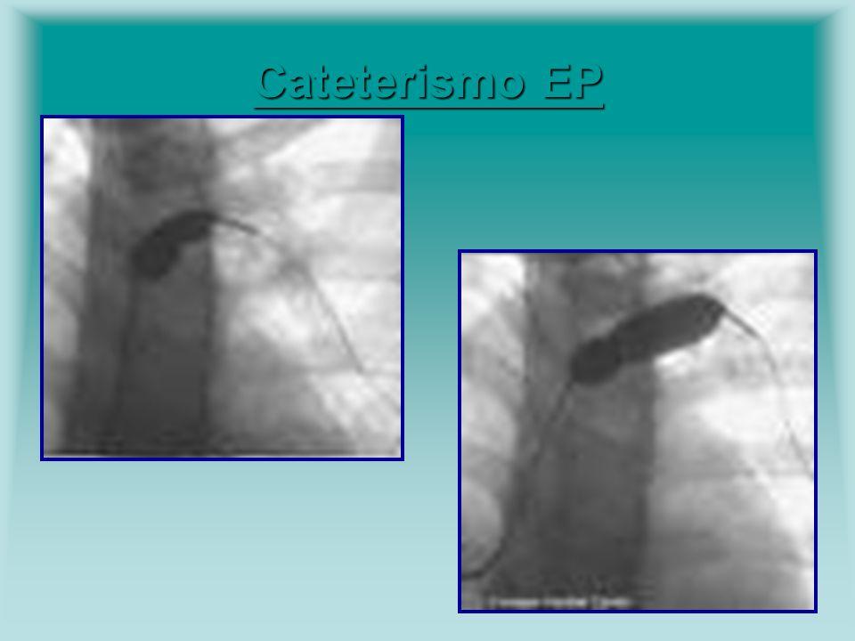 Cateterismo EP Cateterismo EP