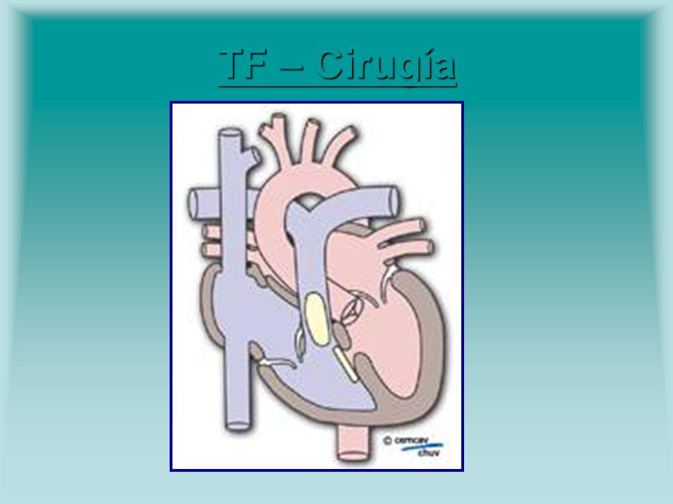 TF – Cirugía TF – Cirugía