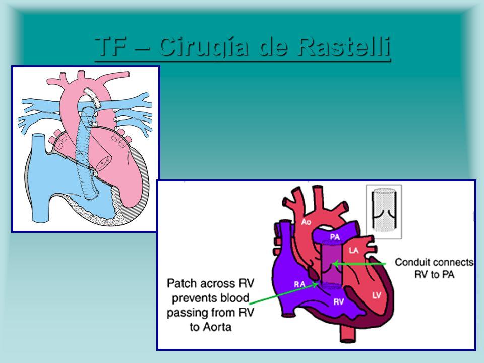 TF – Cirugía de Rastelli TF – Cirugía de Rastelli