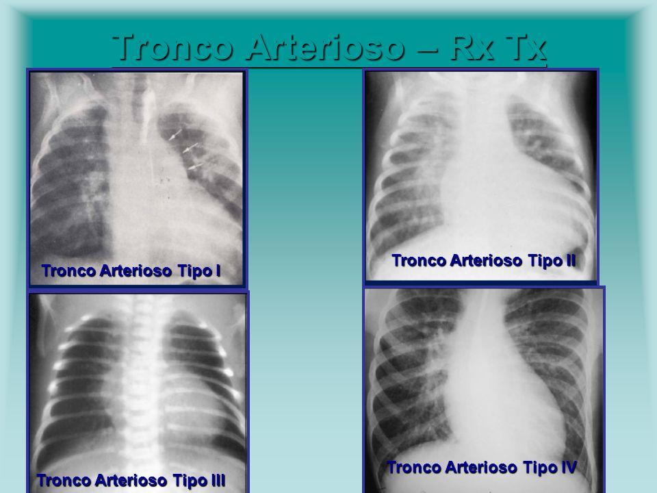 Tronco Arterioso – Rx Tx Tronco Arterioso – Rx Tx Tronco Arterioso Tipo I Tronco Arterioso Tipo II Tronco Arterioso Tipo III Tronco Arterioso Tipo IV