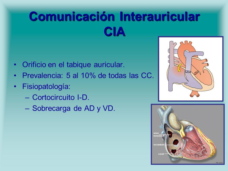 Comunicación Interauricular CIA Orificio en el tabique auricular. Prevalencia: 5 al 10% de todas las CC. Fisiopatología: –Cortocircuito I-D. –Sobrecar