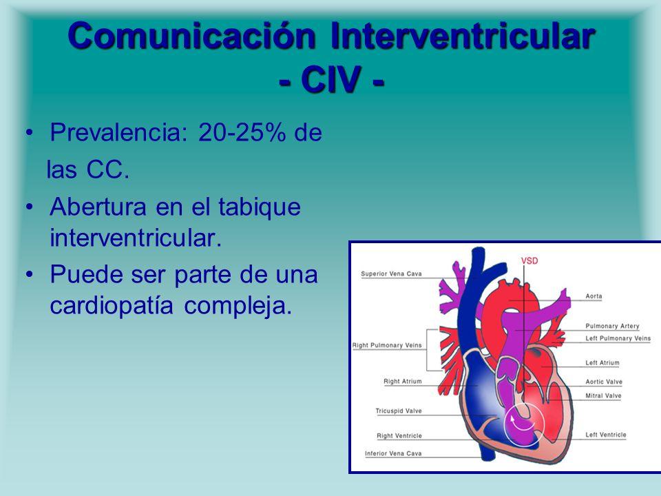 Comunicación Interventricular - CIV - Prevalencia: 20-25% de las CC. Abertura en el tabique interventricular. Puede ser parte de una cardiopatía compl