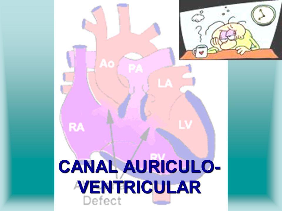 CANAL AURICULO- VENTRICULAR