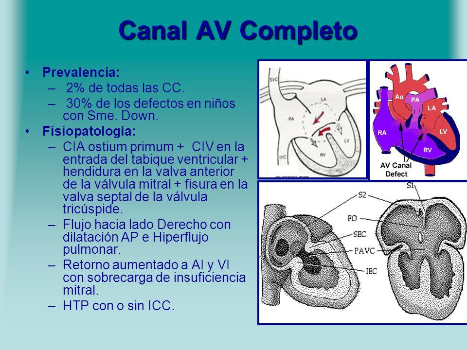 Canal AV Completo Prevalencia: – 2% de todas las CC. – 30% de los defectos en niños con Sme. Down. Fisiopatología: –CIA ostium primum + CIV en la entr