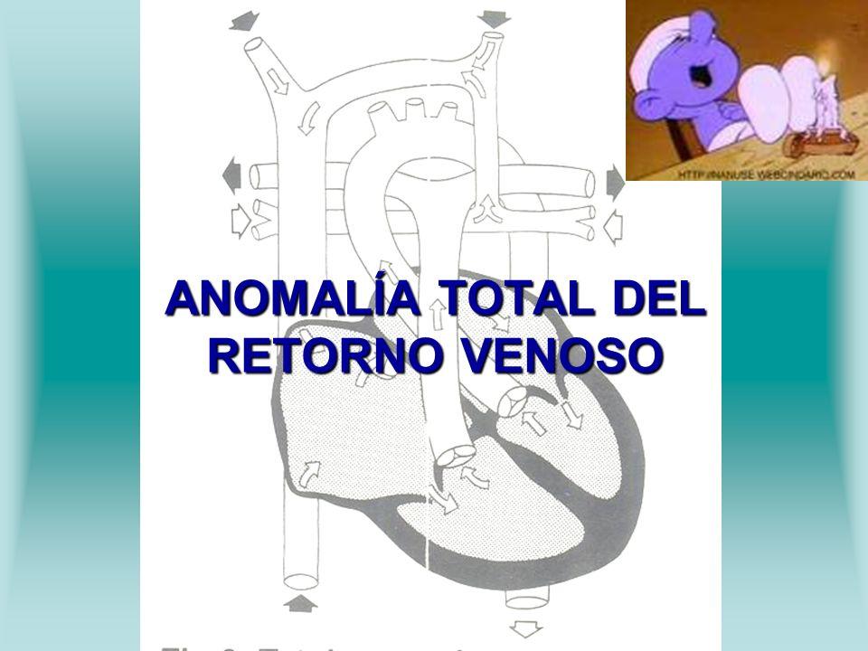 ANOMALÍA TOTAL DEL RETORNO VENOSO