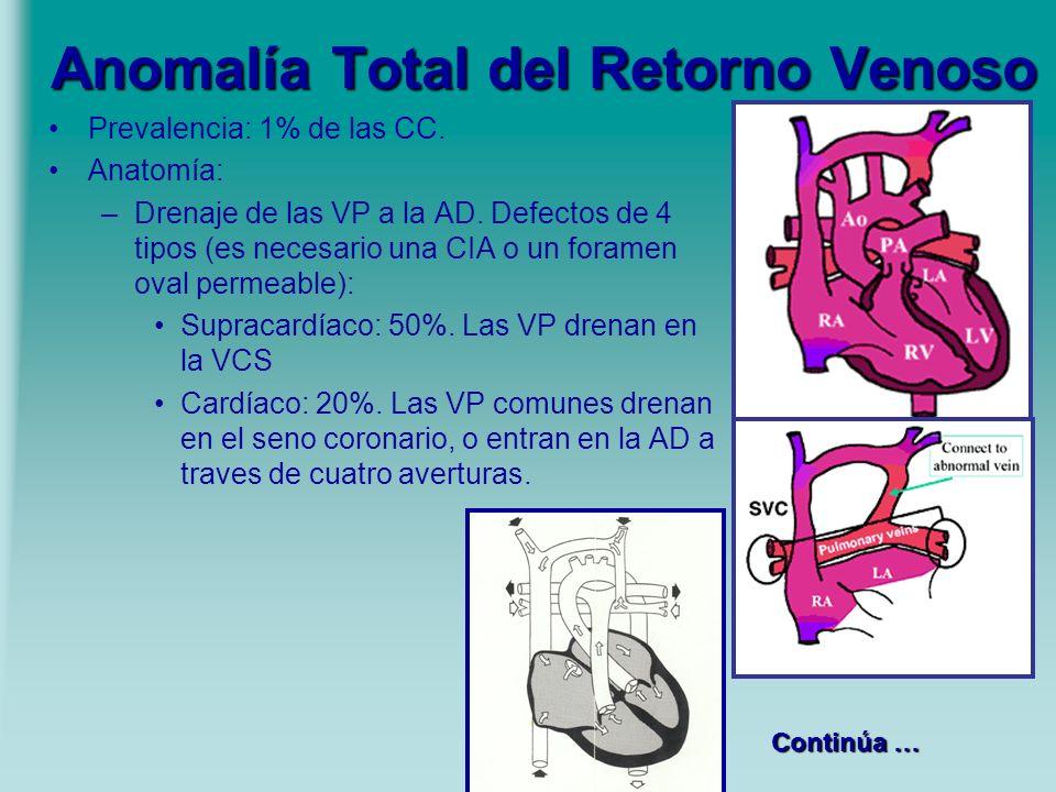 Anomalía Total del Retorno Venoso Prevalencia: 1% de las CC. Anatomía: –Drenaje de las VP a la AD. Defectos de 4 tipos (es necesario una CIA o un fora