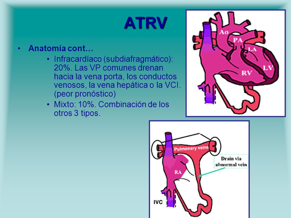 ATRV Anatomía cont… Infracardíaco (subdiafragmático): 20%. Las VP comunes drenan hacia la vena porta, los conductos venosos, la vena hepática o la VCI