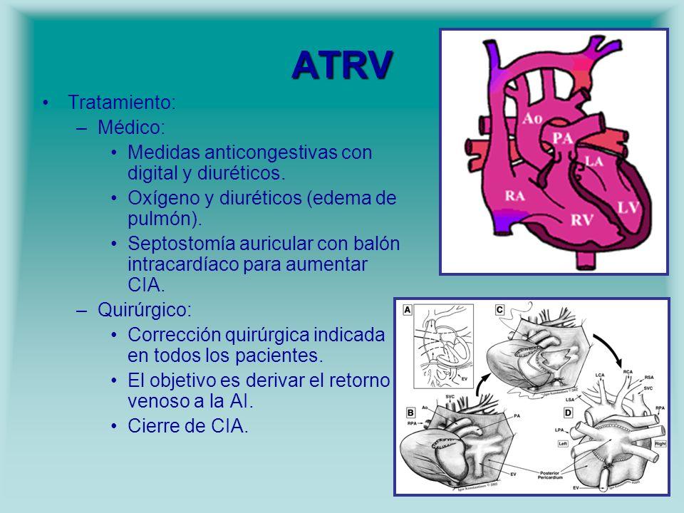 ATRV Tratamiento: –Médico: Medidas anticongestivas con digital y diuréticos. Oxígeno y diuréticos (edema de pulmón). Septostomía auricular con balón i