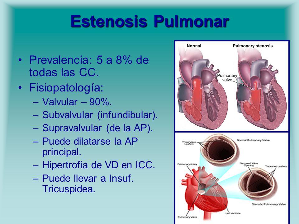 Estenosis Pulmonar Prevalencia: 5 a 8% de todas las CC. Fisiopatología: –Valvular – 90%. –Subvalvular (infundibular). –Supravalvular (de la AP). –Pued