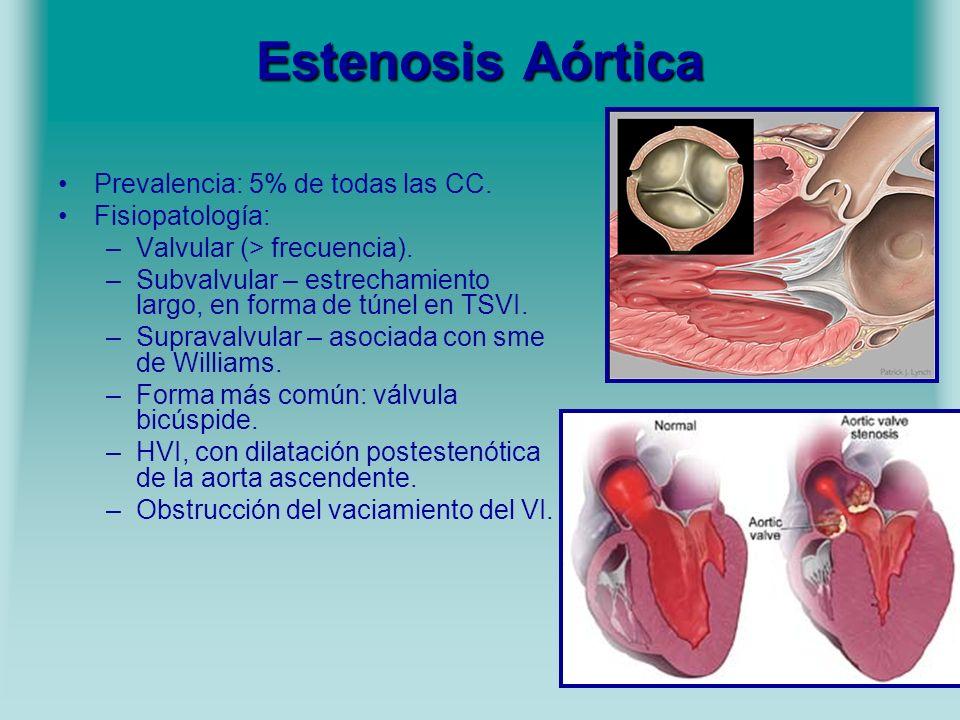Estenosis Aórtica Prevalencia: 5% de todas las CC. Fisiopatología: –Valvular (> frecuencia). –Subvalvular – estrechamiento largo, en forma de túnel en