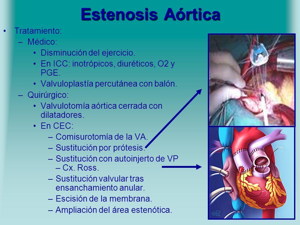 Estenosis Aórtica Tratamiento: –Médico: Disminución del ejercicio. En ICC: inotrópicos, diuréticos, O2 y PGE. Valvuloplastía percutánea con balón. –Qu