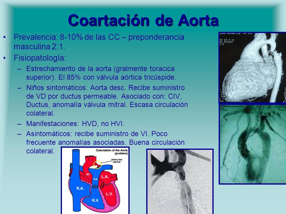 Coartación de Aorta Prevalencia: 8-10% de las CC – preponderancia masculina 2:1. Fisiopatología: –Estrechamiento de la aorta (gralmente toracica super