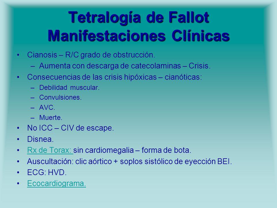 Tetralogía de Fallot Manifestaciones Clínicas Cianosis – R/C grado de obstrucción. –Aumenta con descarga de catecolaminas – Crisis. Consecuencias de l
