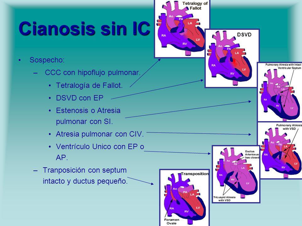 Cianosis sin IC Sospecho: – CCC con hipoflujo pulmonar. Tetralogía de Fallot. DSVD con EP Estenosis o Atresia pulmonar con SI. Atresia pulmonar con CI