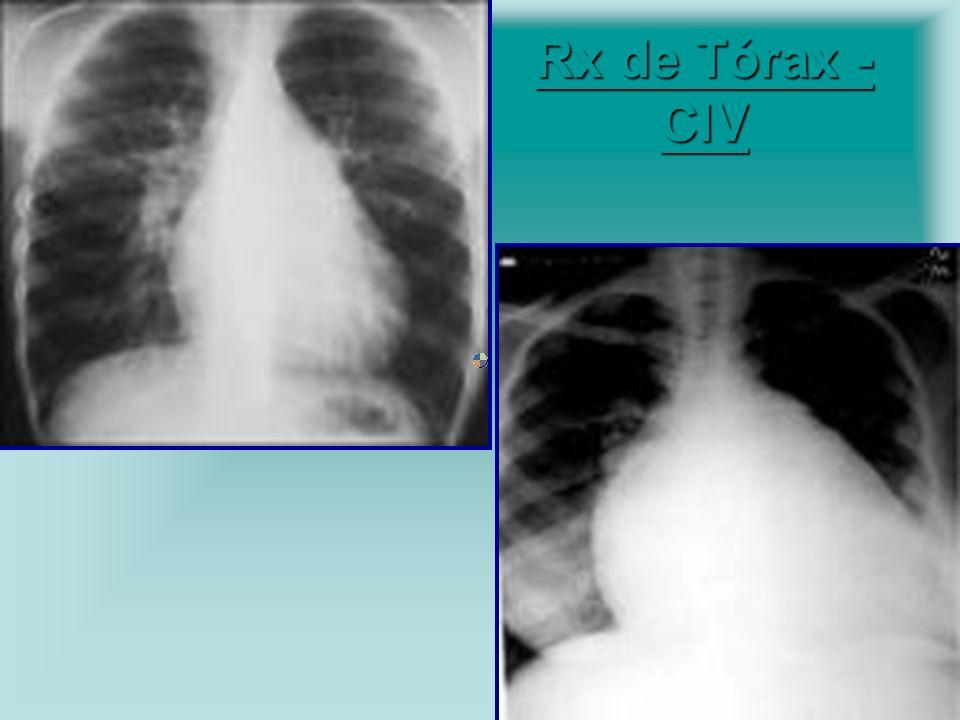 Rx de Tórax - CIV Rx de Tórax - CIV