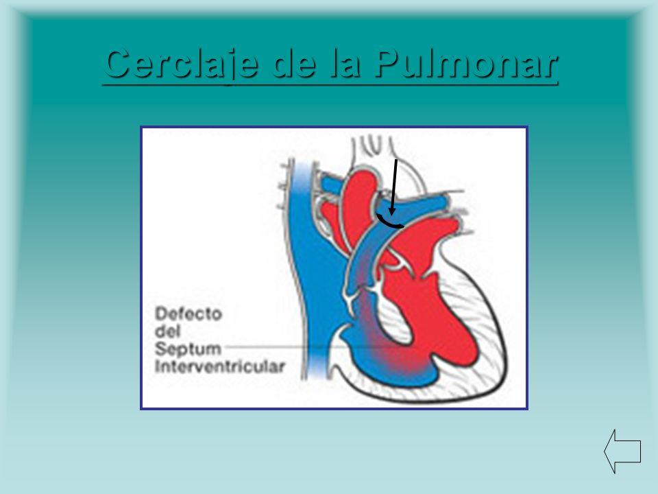 Cerclaje de la Pulmonar Cerclaje de la Pulmonar
