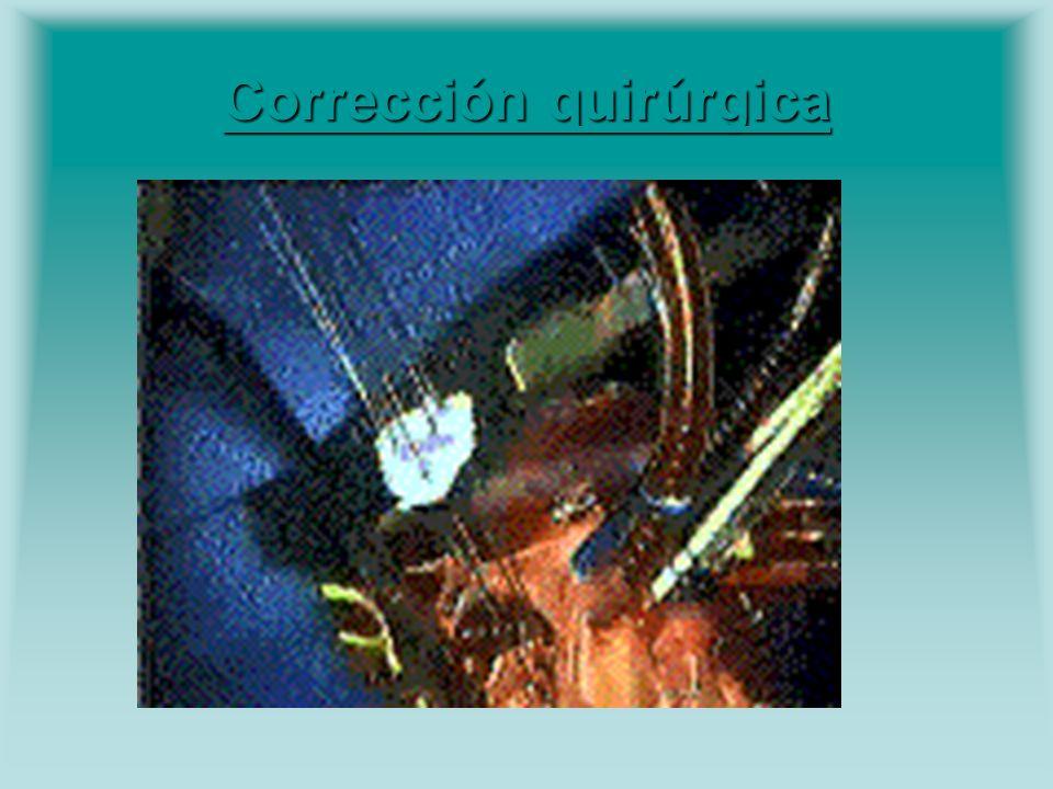 Corrección quirúrgica Corrección quirúrgica