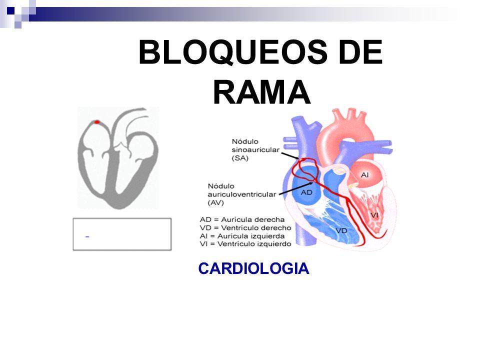 El electrocardiograma mostraba un ritmo sinusal, con eje desviado a la derecha y bloqueo completo de rama derecha (enfermedad de Chagas)