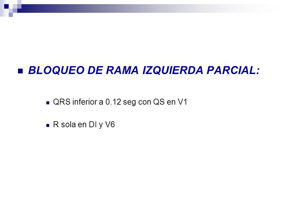 BLOQUEO DE RAMA IZQUIERDA PARCIAL: QRS inferior a 0.12 seg con QS en V1 R sola en DI y V6