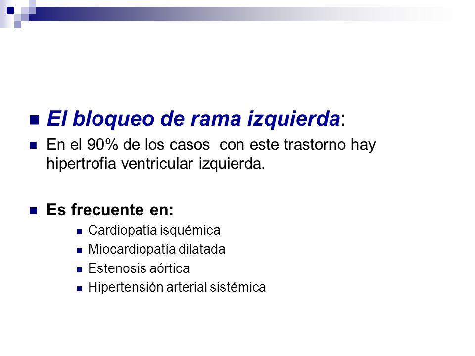 El bloqueo de rama izquierda: En el 90% de los casos con este trastorno hay hipertrofia ventricular izquierda. Es frecuente en: Cardiopatía isquémica