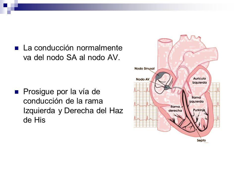07/05/2014 Extrasístoles ventriculares Producidas por un impulso que se origina es un foco ectópico situado en uno de los ventrículos, este impulso interrumpe la conducción normal, lo que produce una despolarización no simultanea, sino secuencial de los ventrículos, además, la conducción ocurre mas lentamente en el miocardio que en las fibras especializadas de conducción, el resultado es un complejo QRS ancho >012 seg y aberrante, la secuencia de repolarización esta también alterada, produciéndose un segmento ST y onda T en dirección opuesta al complejo QRS.