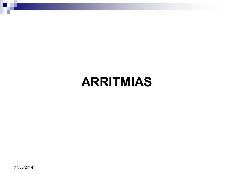 ARRITMIAS 07/05/2014