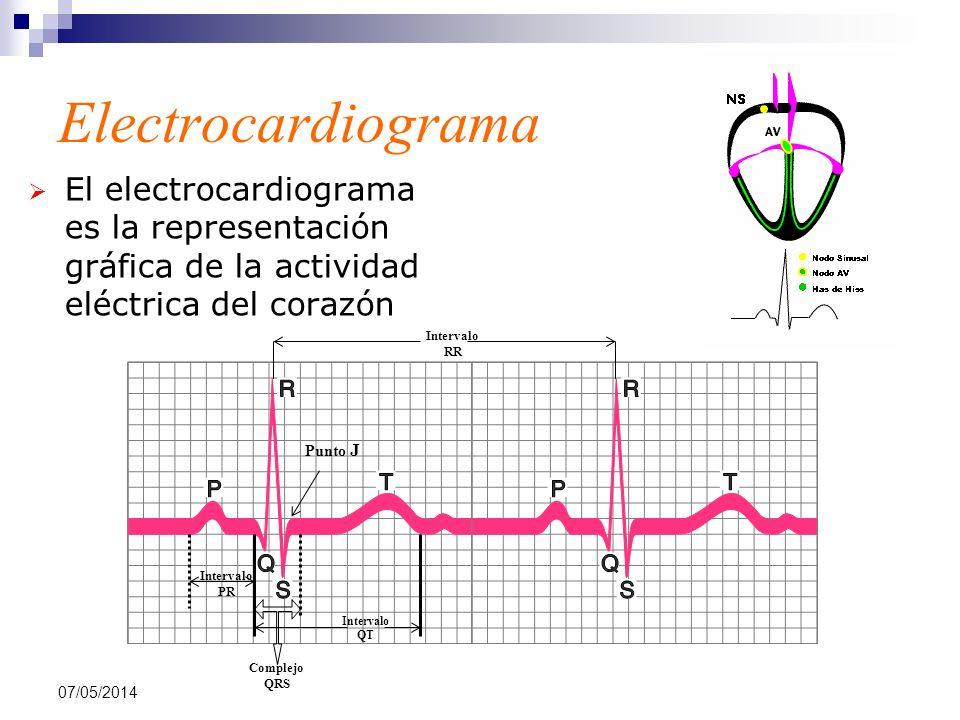 07/05/2014 Electrocardiograma El electrocardiograma es la representación gráfica de la actividad eléctrica del corazón Intervalo PR Complejo QRS Inter