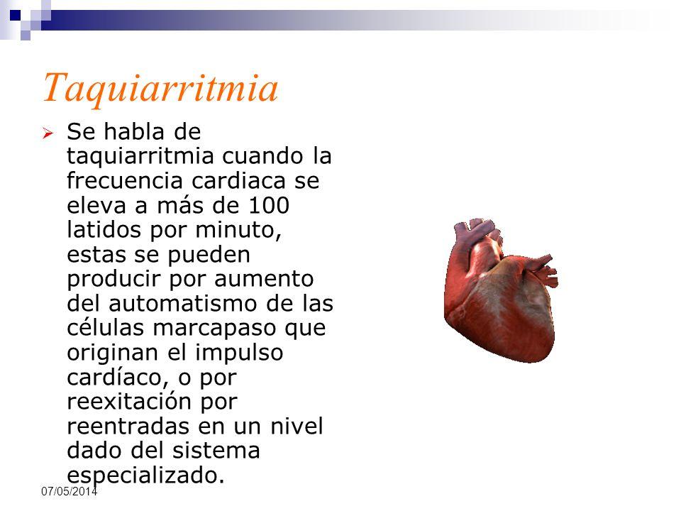 07/05/2014 Taquiarritmia Se habla de taquiarritmia cuando la frecuencia cardiaca se eleva a más de 100 latidos por minuto, estas se pueden producir po