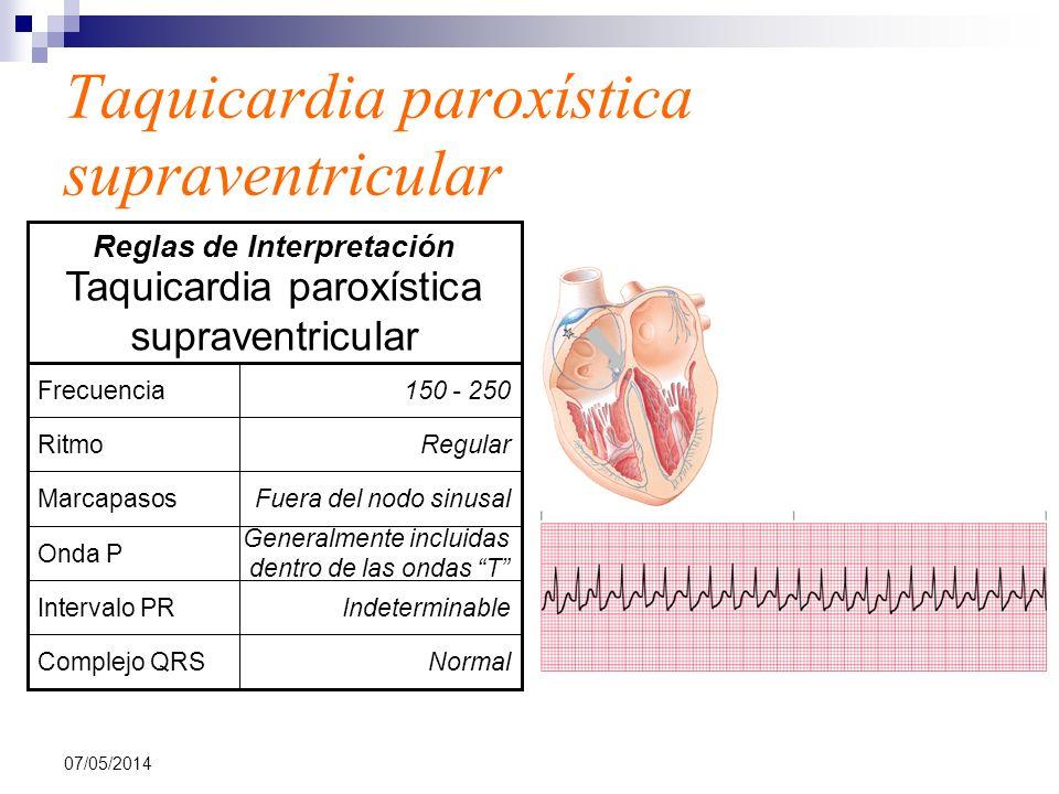 07/05/2014 Taquicardia paroxística supraventricular NormalComplejo QRS IndeterminableIntervalo PR Generalmente incluidas dentro de las ondas T Onda P