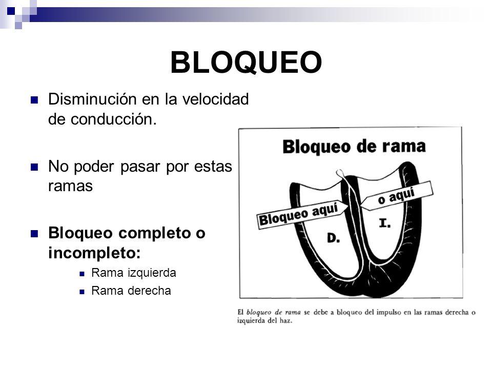 BLOQUEO DE RAMA IZQUIERDA El ventrículo izquierdo se activa al ultimo.