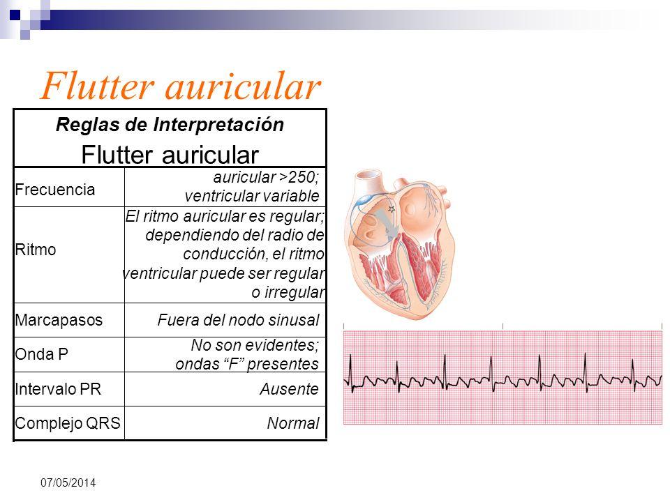 07/05/2014 Flutter auricular NormalComplejo QRS AusenteIntervalo PR No son evidentes; ondas F presentes Onda P Fuera del nodo sinusalMarcapasos El rit