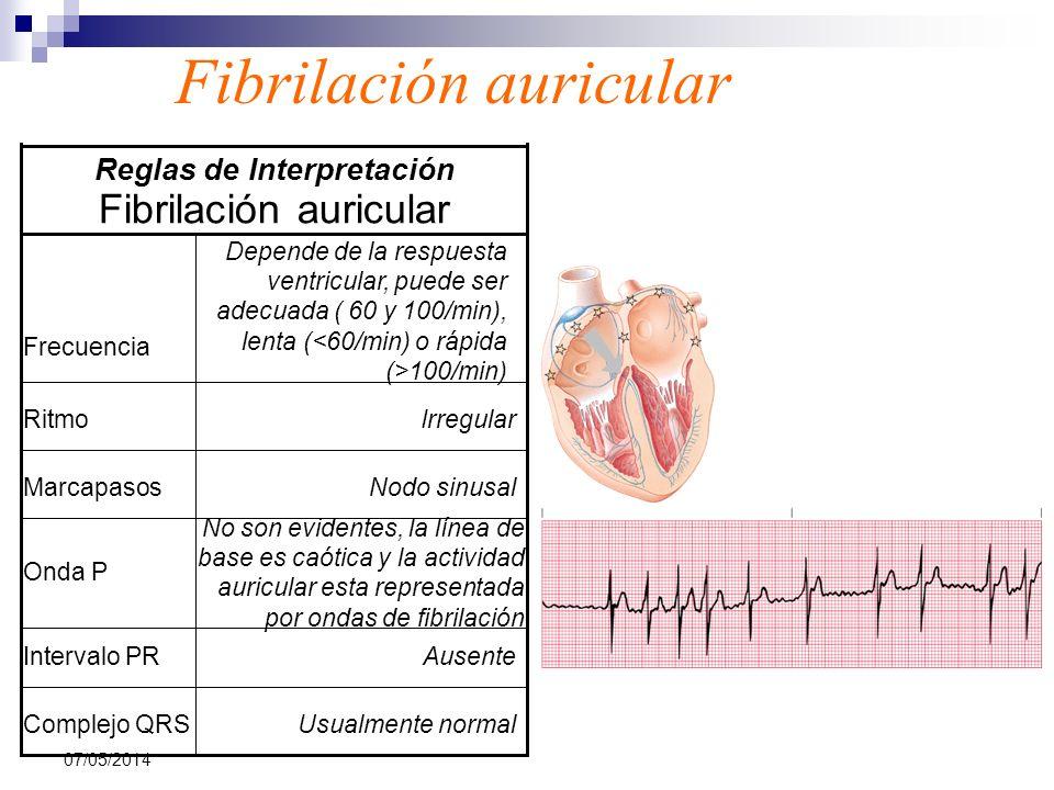 07/05/2014 Fibrilación auricular Usualmente normalComplejo QRS AusenteIntervalo PR No son evidentes, la línea de base es caótica y la actividad auricu