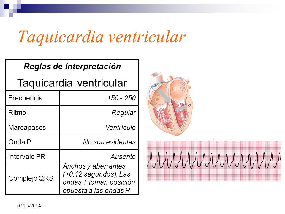 07/05/2014 Taquicardia ventricular Anchos y aberrantes (>0.12 segundos). Las ondas T toman posición opuesta a las ondas R Complejo QRS AusenteInterval