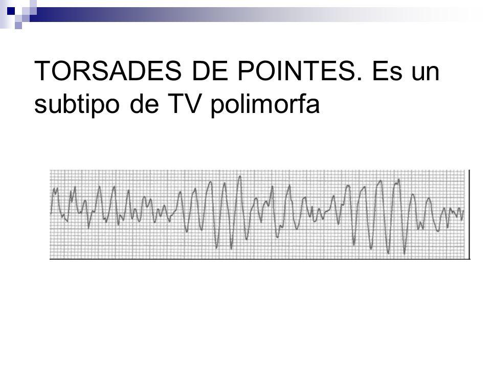 TORSADES DE POINTES. Es un subtipo de TV polimorfa