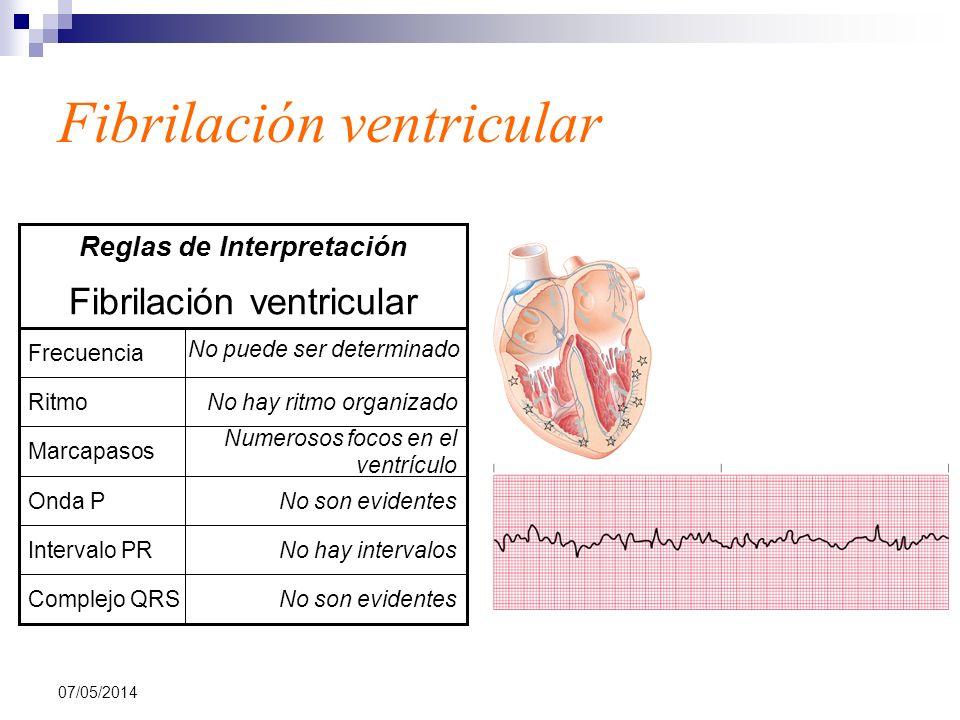07/05/2014 Fibrilación ventricular No son evidentesComplejo QRS No hay intervalosIntervalo PR No son evidentesOnda P Numerosos focos en el ventrículo