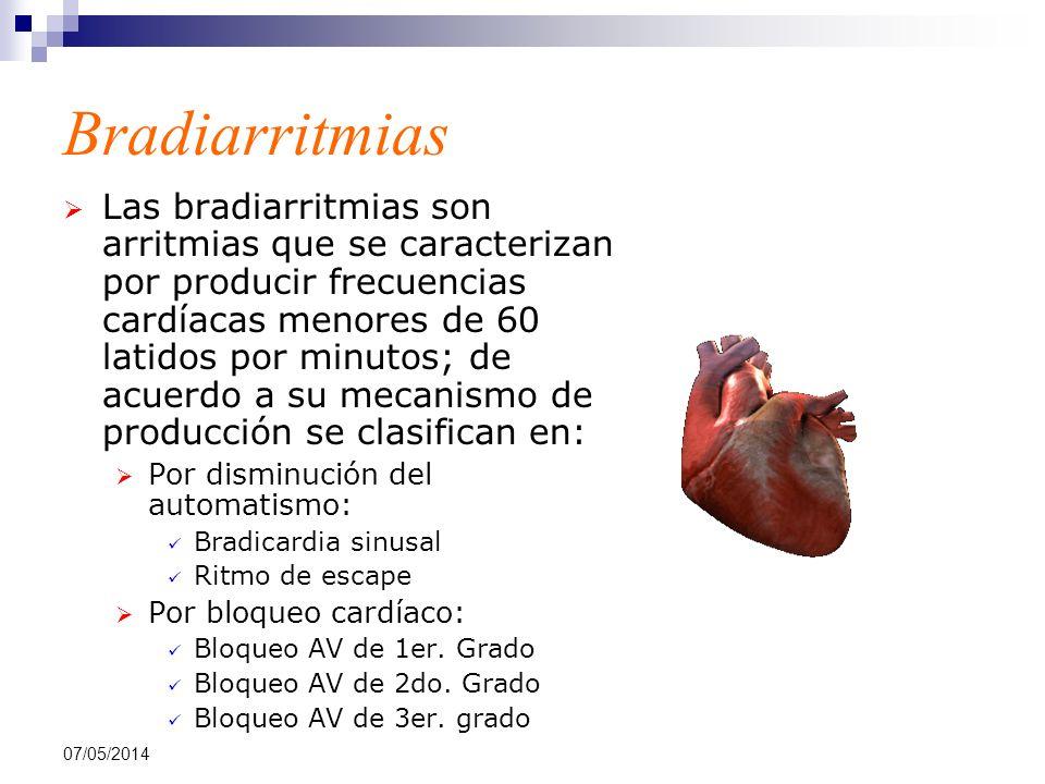07/05/2014 Bradiarritmias Las bradiarritmias son arritmias que se caracterizan por producir frecuencias cardíacas menores de 60 latidos por minutos; d
