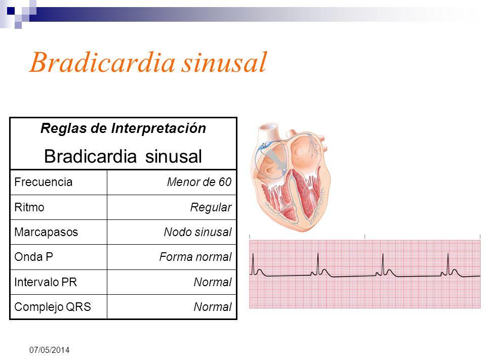 07/05/2014 Bradicardia sinusal NormalComplejo QRS NormalIntervalo PR Forma normalOnda P Nodo sinusalMarcapasos RegularRitmo Menor de 60Frecuencia Brad