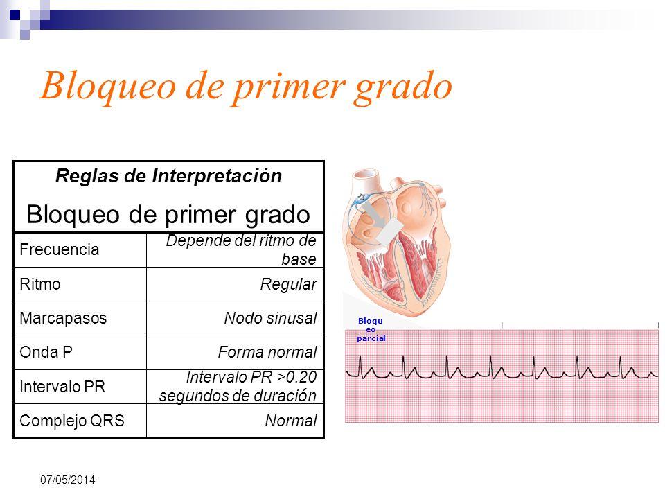 07/05/2014 Bloqueo de primer grado NormalComplejo QRS Intervalo PR >0.20 segundos de duraci ó n Intervalo PR Forma normalOnda P Nodo sinusalMarcapasos