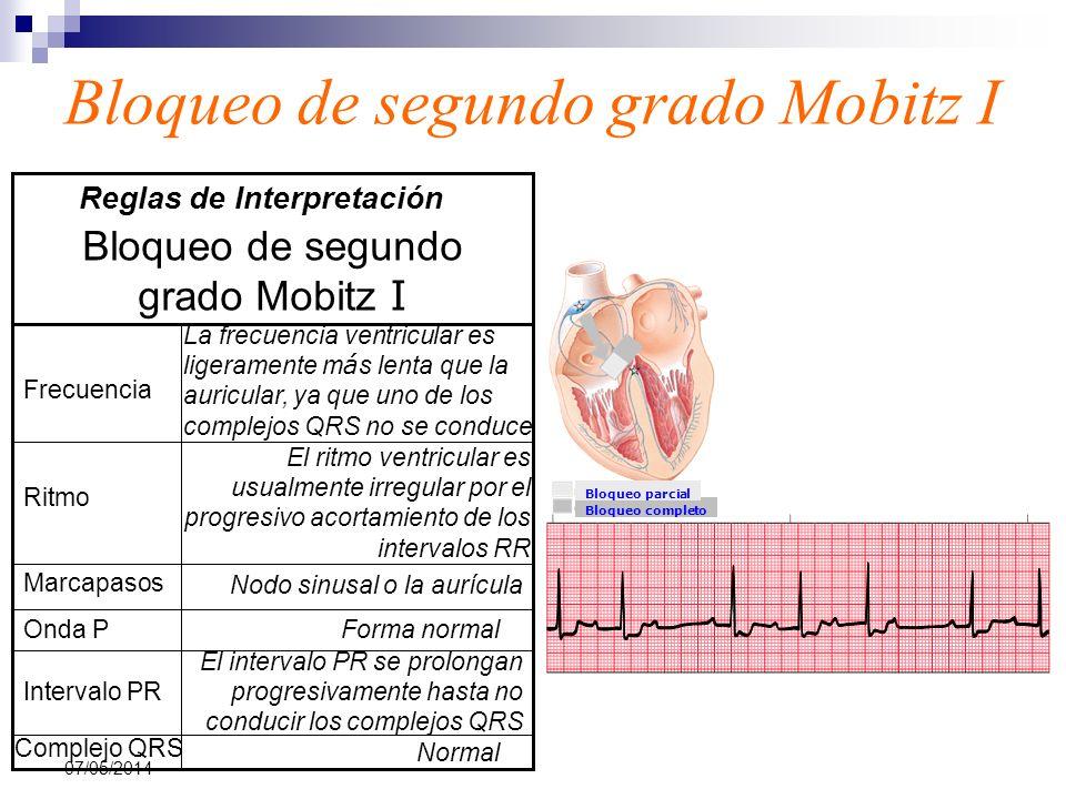 07/05/2014 Bloqueo de segundo grado Mobitz I Normal Complejo QRS El intervalo PR se prolongan progresivamente hasta no conducir los complejos QRS Inte