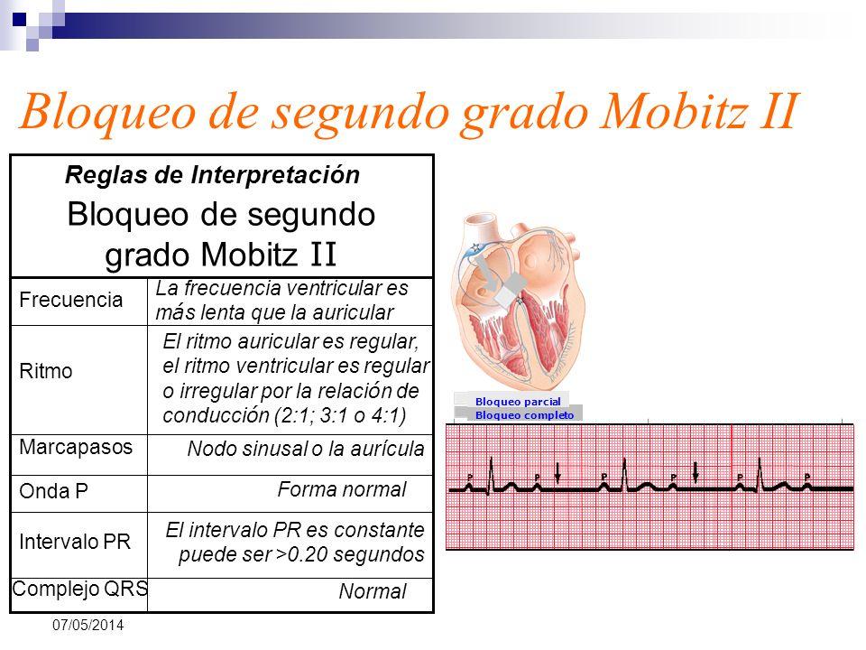 07/05/2014 Bloqueo de segundo grado Mobitz II Bloqueo completo Bloqueo parcial Normal Complejo QRS El intervalo PR es constante puede ser >0.20 segund