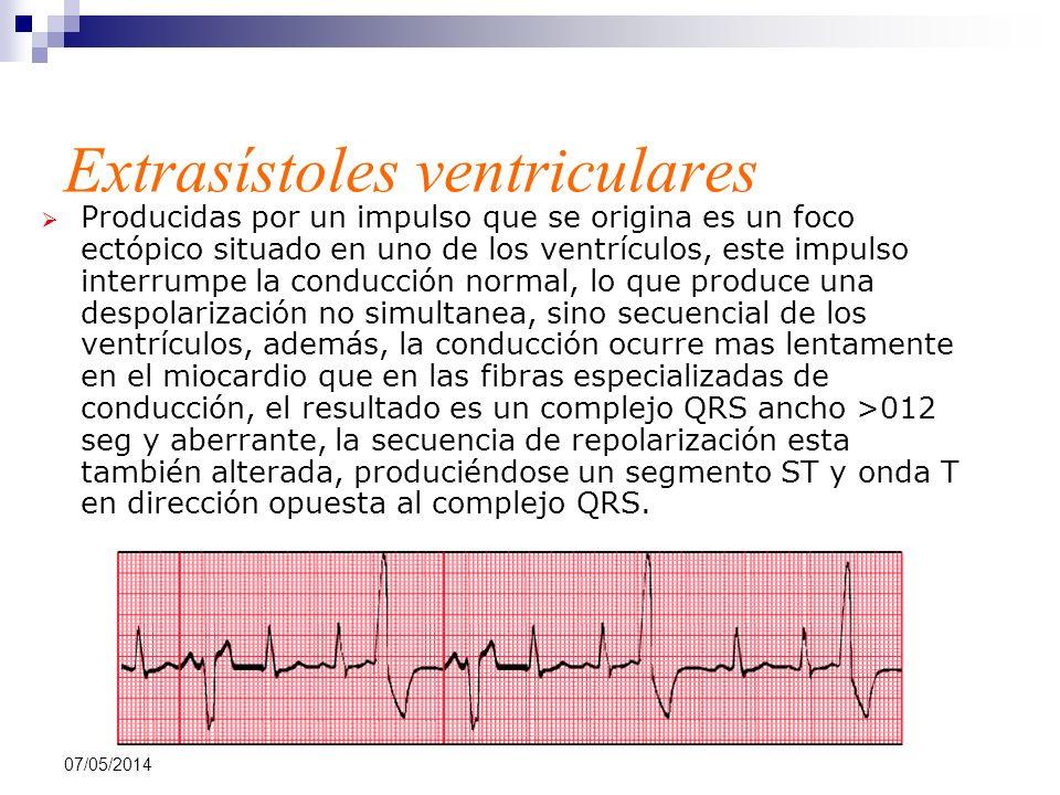07/05/2014 Extrasístoles ventriculares Producidas por un impulso que se origina es un foco ectópico situado en uno de los ventrículos, este impulso in