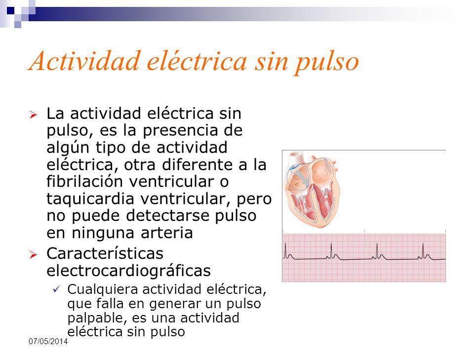 07/05/2014 Actividad eléctrica sin pulso La actividad eléctrica sin pulso, es la presencia de algún tipo de actividad eléctrica, otra diferente a la f