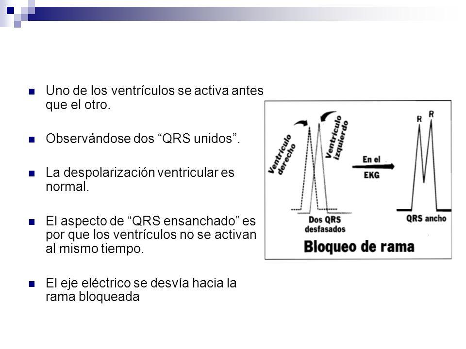 El QRS ensanchado representa una despolarización no simultánea de ambos ventrículos Pueden verse dos ondas R que se llaman R y R´ El QRS abarca 3 cuadros pequeños (0.12 seg) o más.