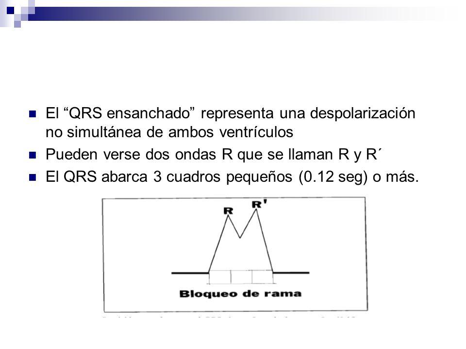 El QRS ensanchado representa una despolarización no simultánea de ambos ventrículos Pueden verse dos ondas R que se llaman R y R´ El QRS abarca 3 cuad